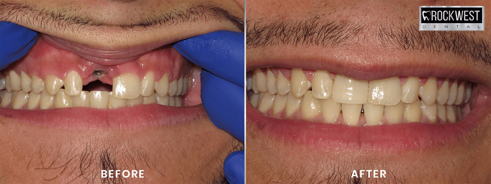Before and After Single Implant Replacement Mississauga