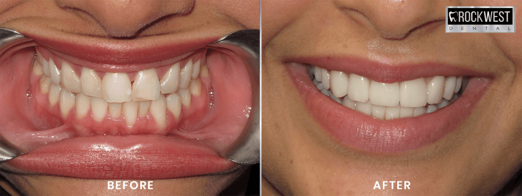 Before and After Veneers Mississauga