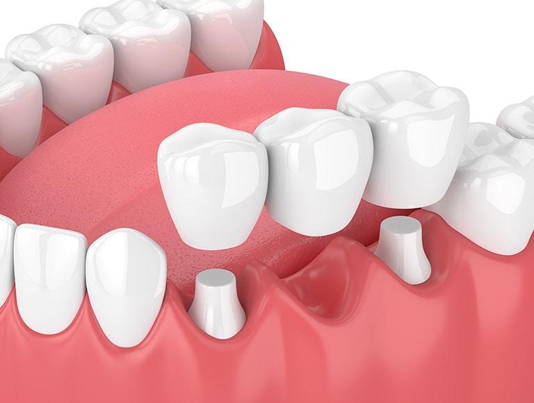 Cosmetic Dentistry Bridges