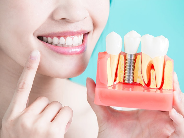 Dental Implants Gaps