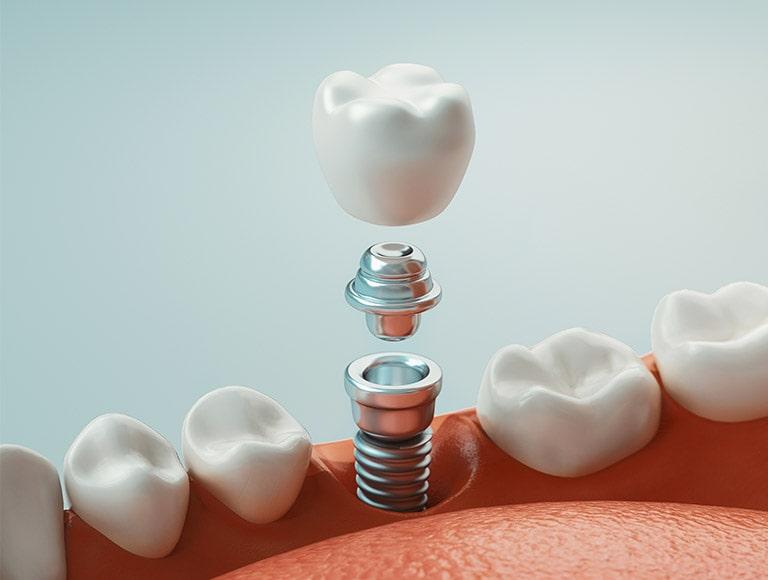 Dental Implants Mississauga
