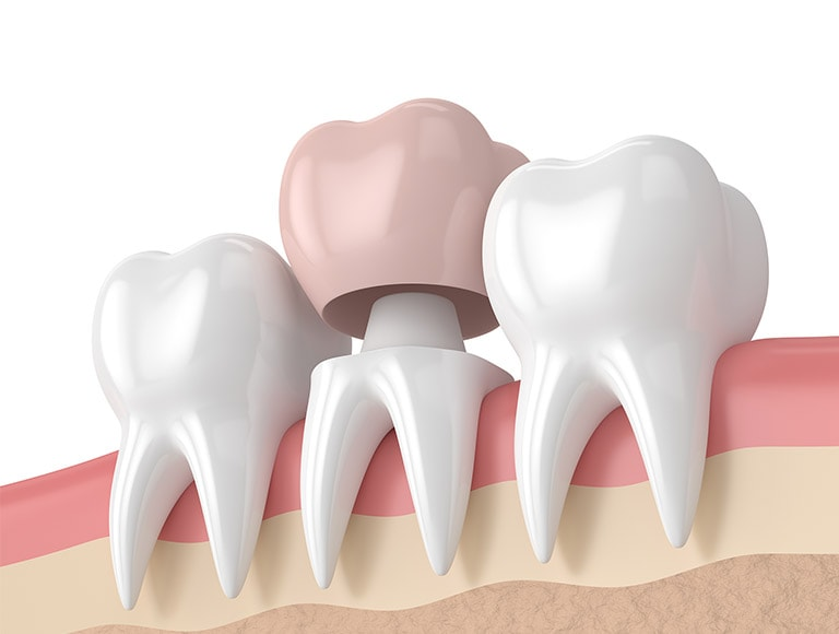 Emergency Dentist Dislodged Crown