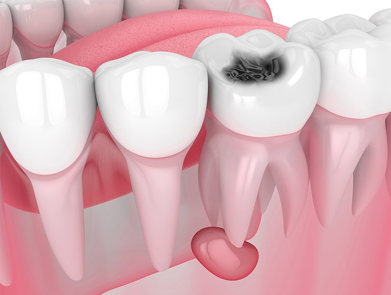 Gum Disease Tooth Extraction