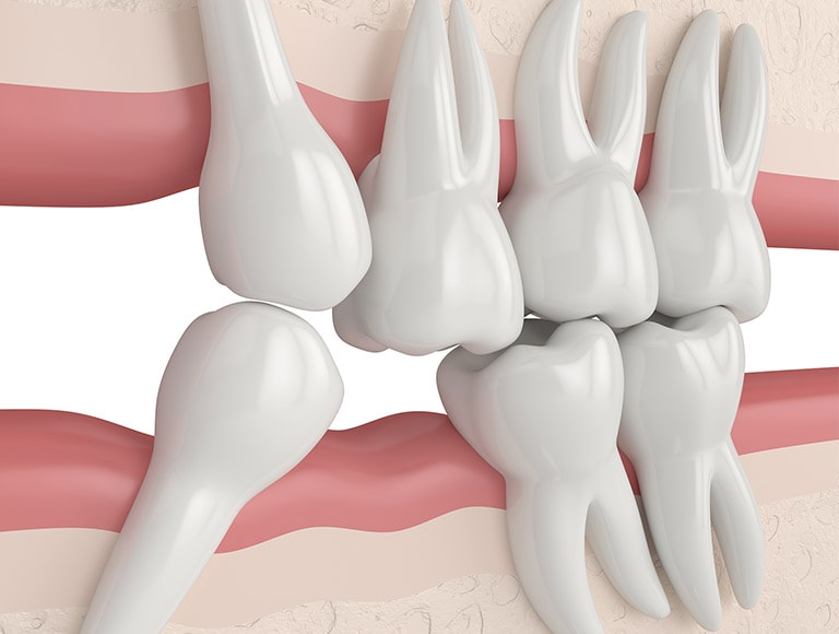 Impacted Tooth Crowding