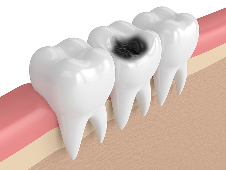 Risk Of Tooth Infection