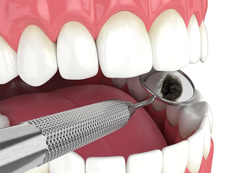 Tooth Pulp Infection