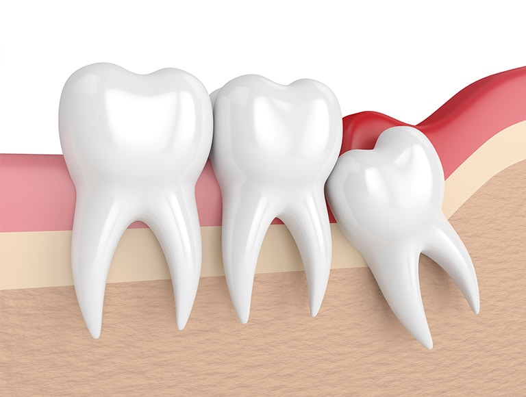 Wisdom Teeth Extraction Dentist