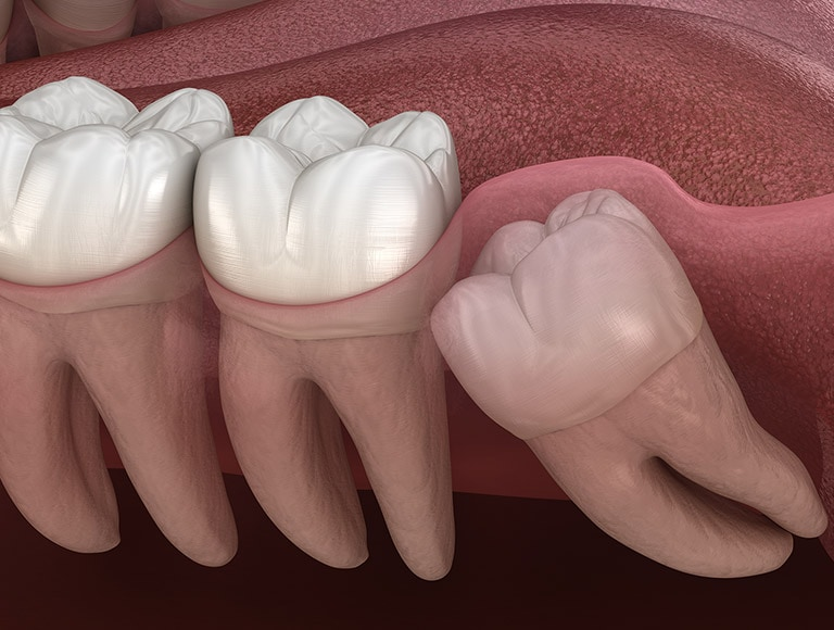 Wisdom Tooth Damage