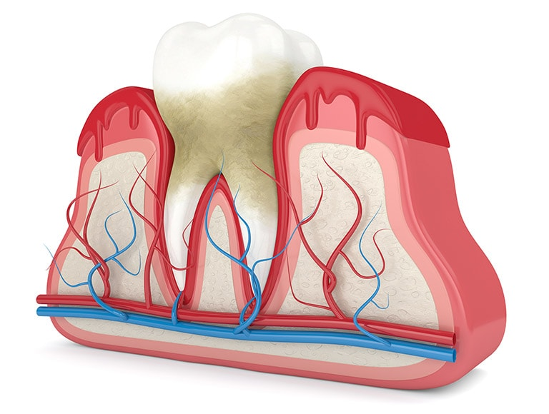 Wisdom Tooth Inflammation