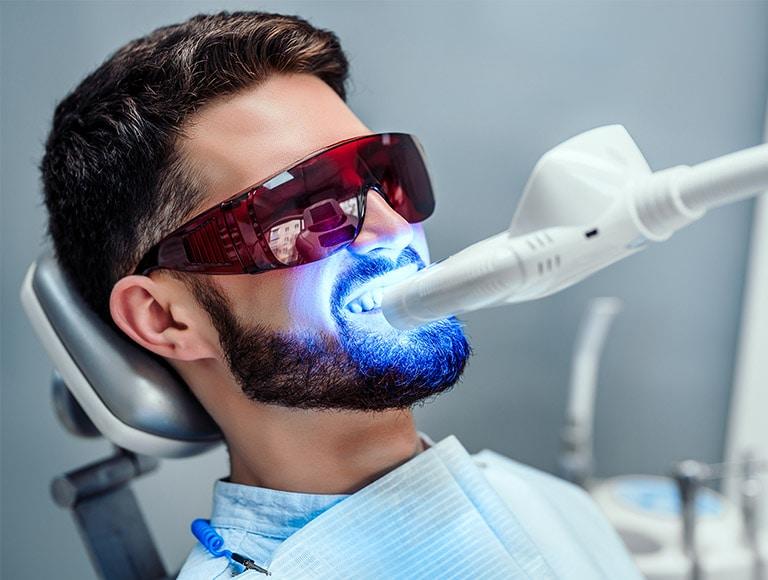 Zoom Teeth Whitening Mississauga