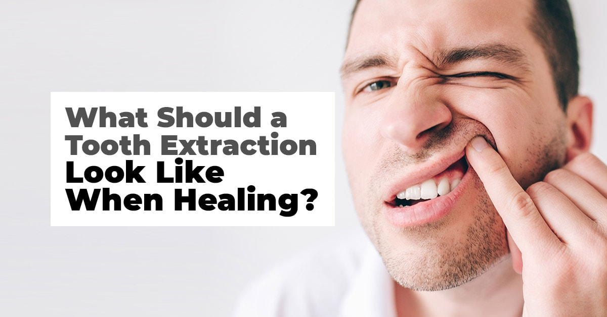 What Should A Tooth Extraction Look Like When Healing