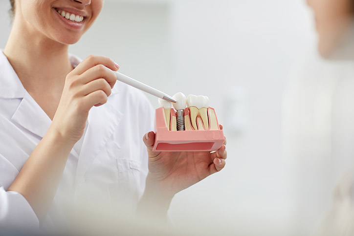 Dental Implants Benefits in Mississauga