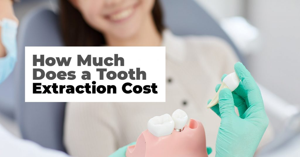 How Much Does A Tooth Extraction Cost In Mississauga