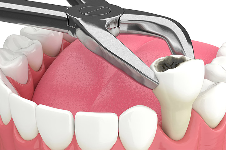 Simple Tooth Extraction Procedures In Mississauga
