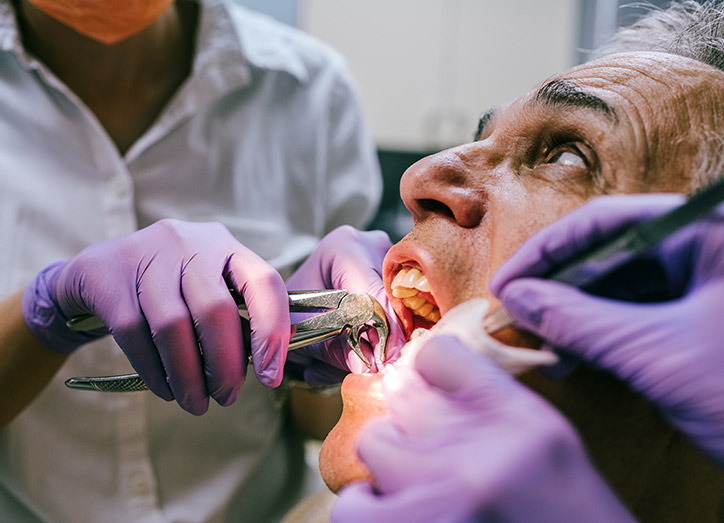 The Tooth Extraction Process Mississauga